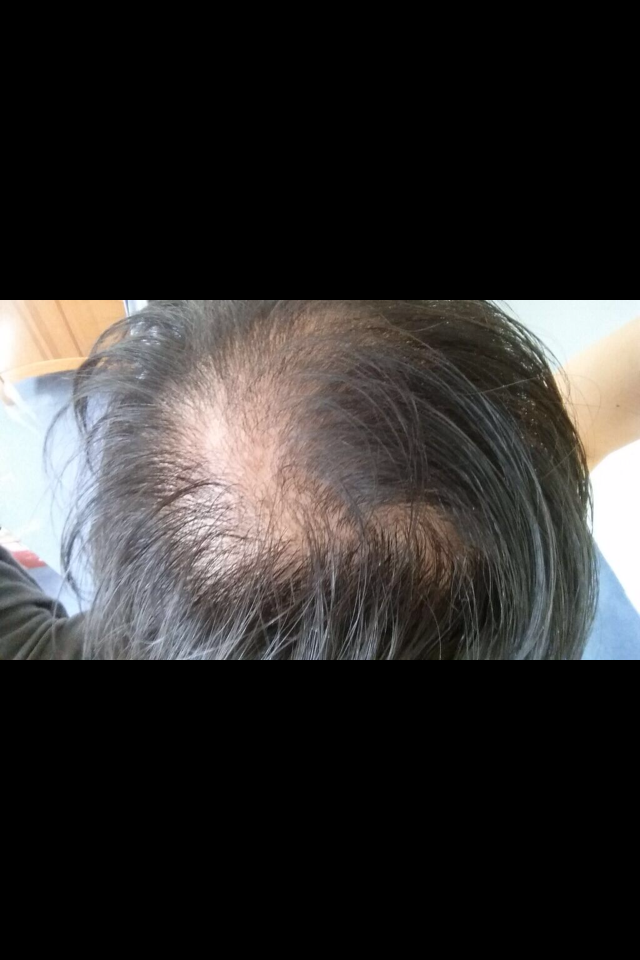manisha hairloss.png