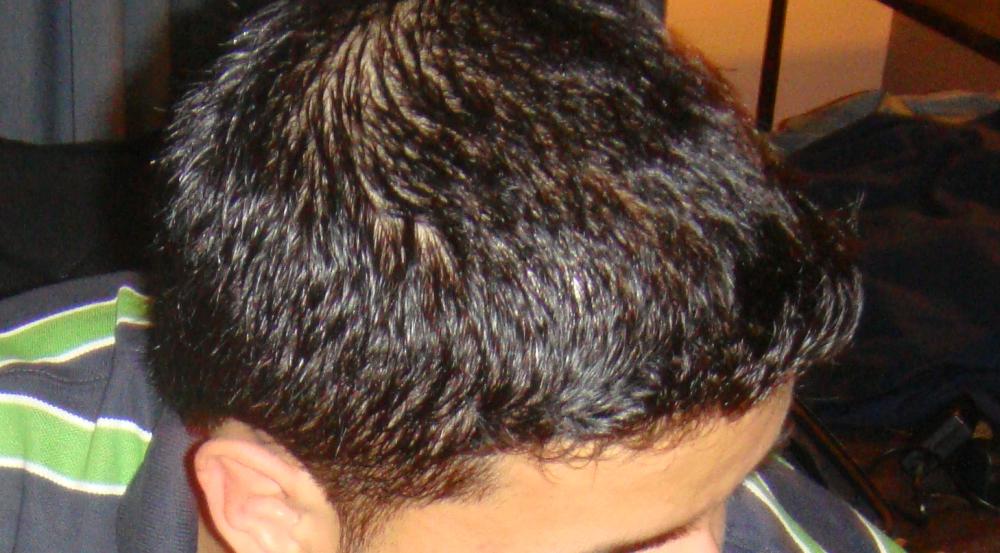 Hair Looks Thin When Wet But No Miniaturisation Still Balding Or