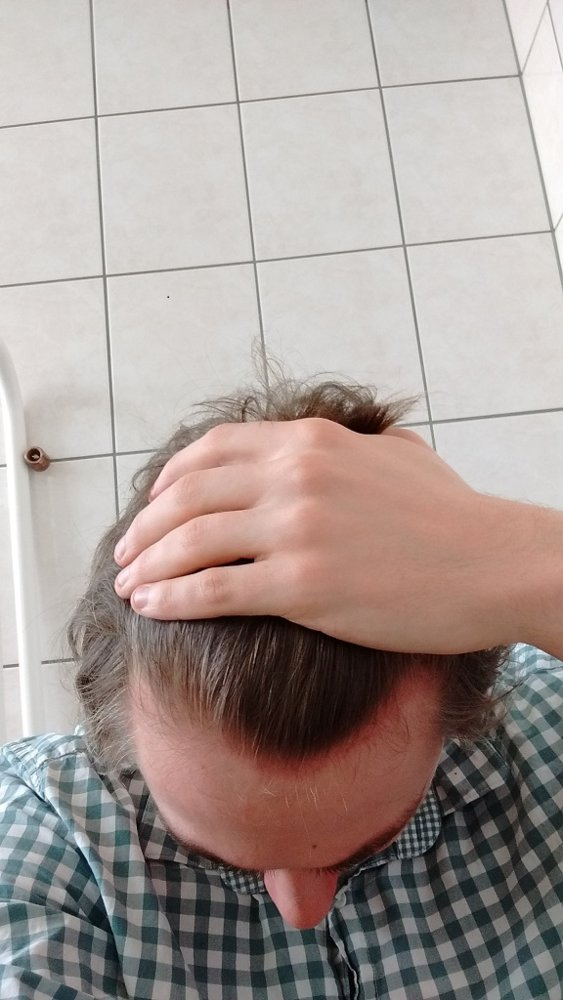 24 Yo 1 Year On Finasteride Lost A Lot Of Hair Hairlosstalk Forums