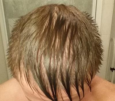 Finasteride An Emotional Rollercoaster Hairlosstalk Forums
