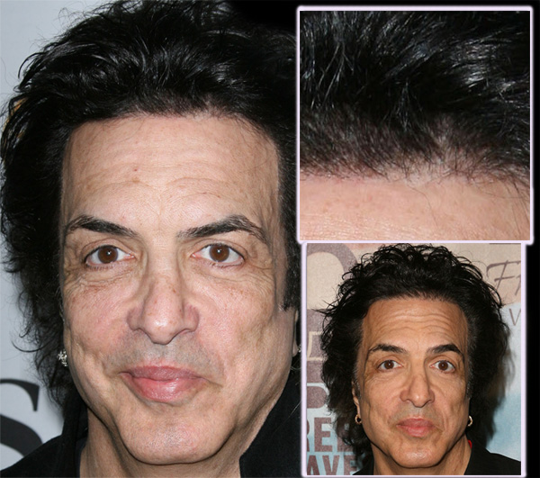 paul-stanley-before-and-after.jpg