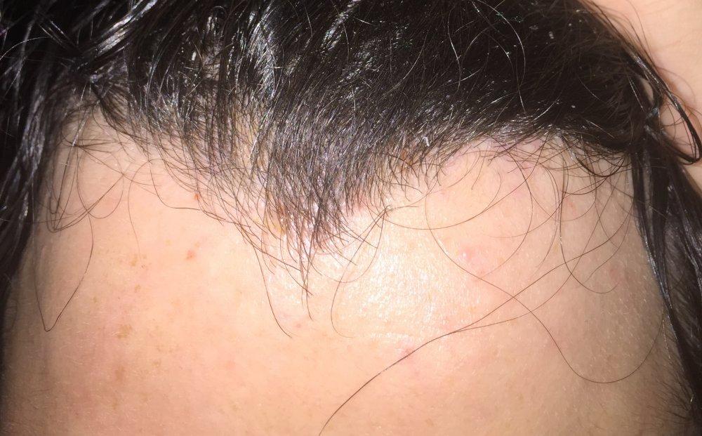 lamictal rash on foot