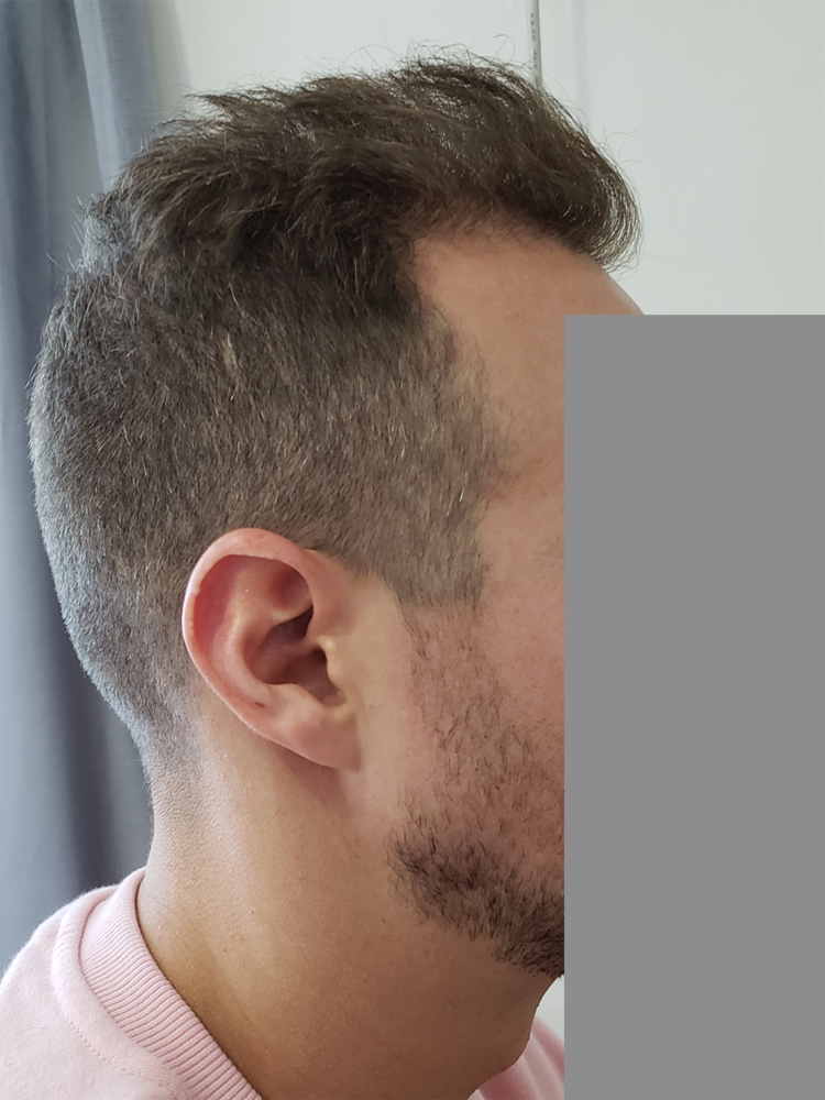 right side of hair copy.png
