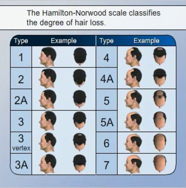 The DHT sensitivity theory is debunk   HairLossTalk Forums
