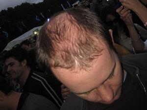 Smoking-and-Hair-Loss.png