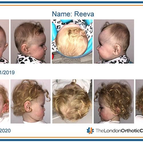 steyne-reeva-before-and-after-photo-reportpdf.jpg?mode=crop&center=0.5,0.jpg