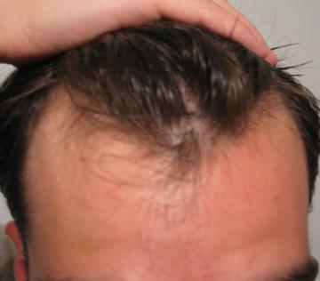 Receding hairline for rogaine Rogaine for