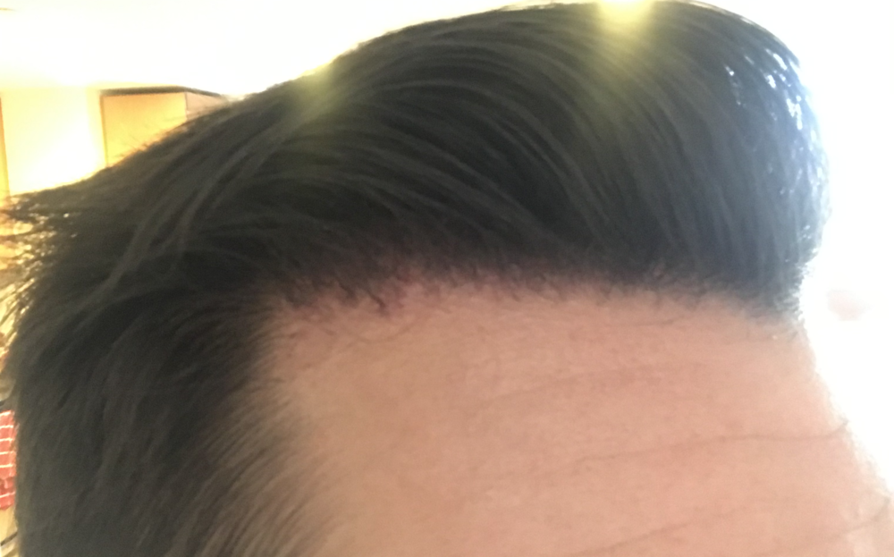 TP3 right side 2.5 months.png