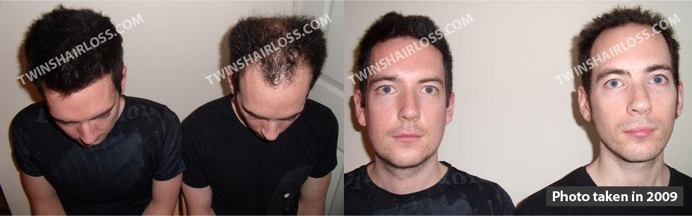 Are propecia facial hair loss idea