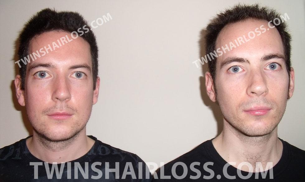 twins-hair-loss-comparison-photo-11.jpg