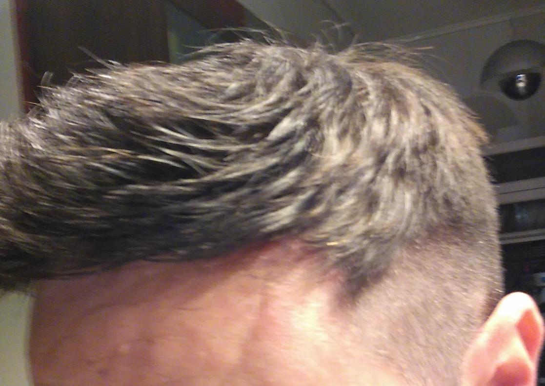 Pros And Cons Of A System Hairlosstalk Forums