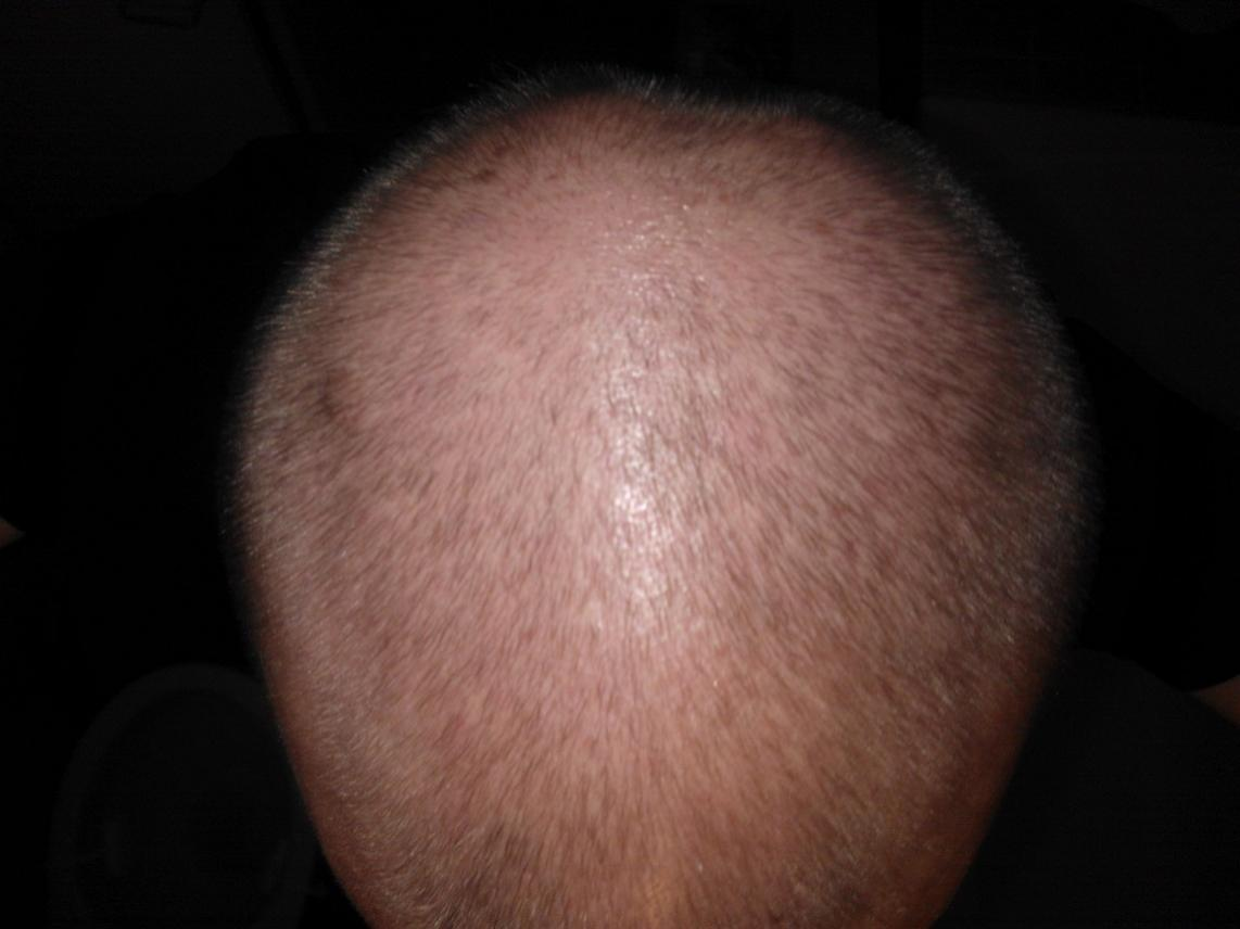 Propecia not working after 4 months.doc - This Is 2 Months On Finasteride Around 2 Months On Nizoral