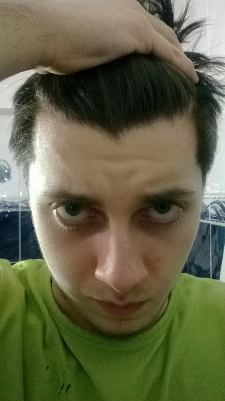 Strange Uneven Hairline Mature Hairline Or Male Pattern Baldness Start Short Hairstyles Gunalazisus