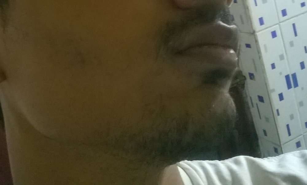 Thinning Hair And A Patchy Beard, Help | HairLossTalk Forums