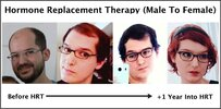 hormone-replacement-therapy-transgender-hair-regrowth.jpg