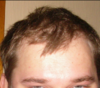 Hairline 2008.png