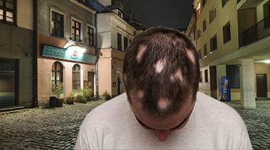 Alopecia Areata Guide