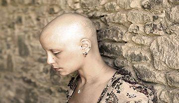 Alopecia Support