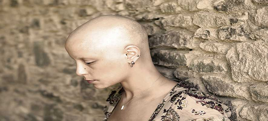 Alopecia Totalis Information