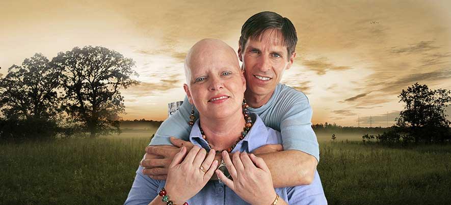 Alopecia Universalis Information