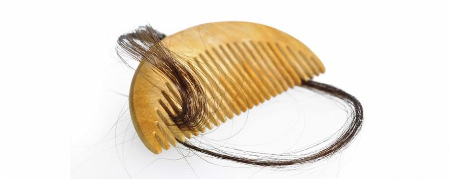 Diagnosing Alopecia Areata