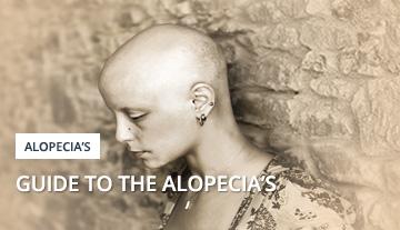Alopecia Guide
