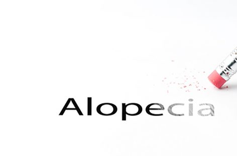 Alopecia Areata Cure?  Aclaris Therapeutics JAK3 Inhibitors.