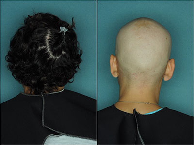 Alopecia Areata Stopping JAK3 Treatment