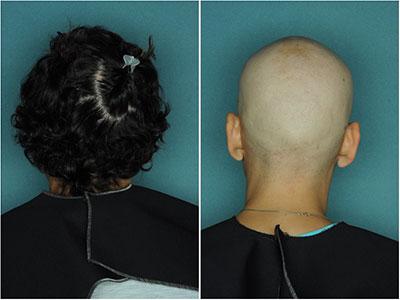 Alopecia Areata Stopping JAK3 Treatment