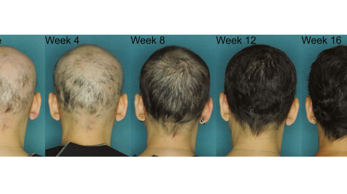 New Study Confirms JAK3 Effective in Alopecia Areata