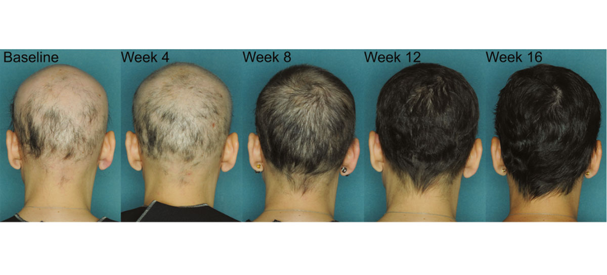 Female Androgenetic Alopecia Natural Treatment