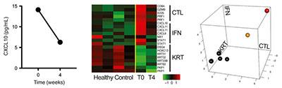 CXCL10 ALADIN Tofacitinib