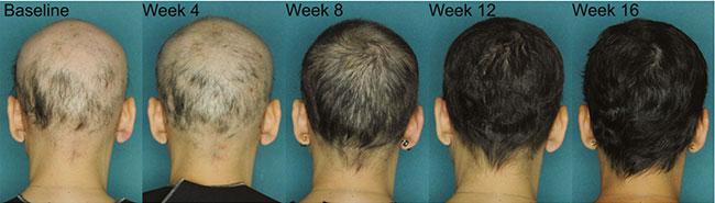 JAK3 Inhibitors Alopecia