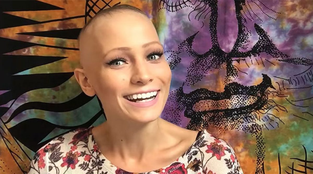 22 Year Old Alopecia Areata Spokeswoman: Abby Andrew