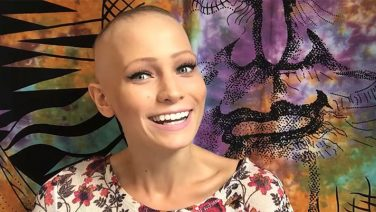 22 Year Old Alopecia Areata Spokeswoman: Abby Andrew